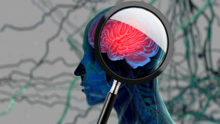 Bilim insanları, beyin taramasında demansı tespit edebilecek teknoloji üzerinde çalışıyor